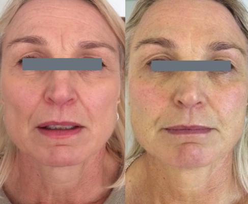 3 hoitokertaa Deep Skin ja RF