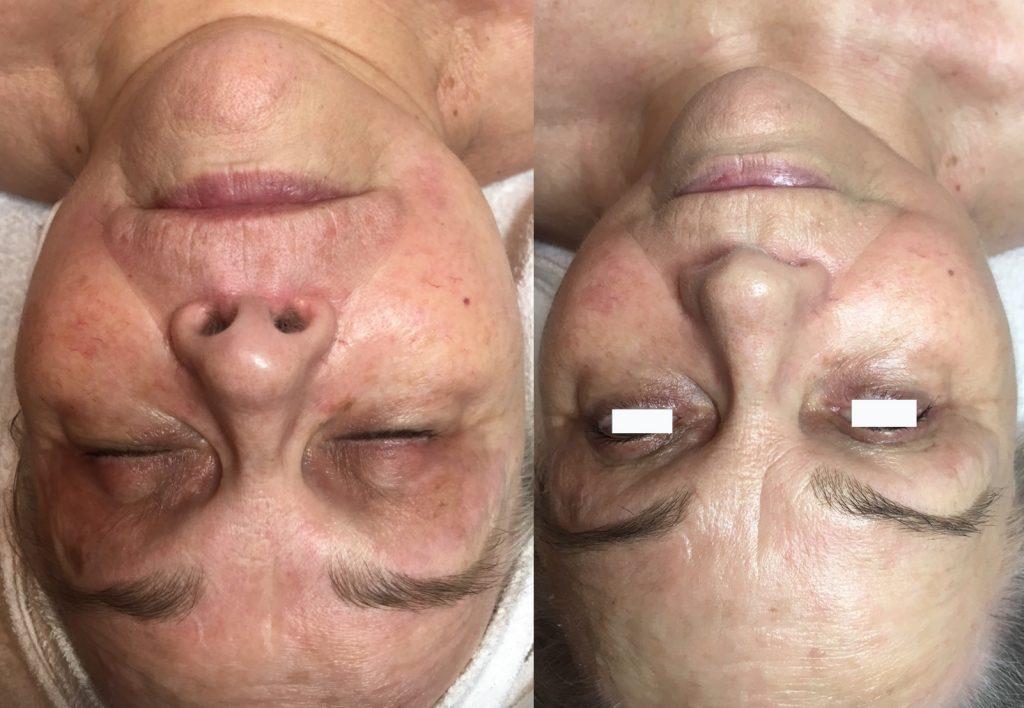 PH kasvot 3 hoitokertaa