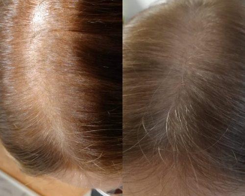 hoitonesteet päänahalle 11 kk käytön jälkeen